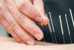 An image of acupuncturist inserting a needle into a patient.