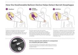 How the swallowable balloon device helps detect Barrett Esophagus.