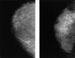 A side-by-side of two normal mammograms showing the difference between a dense breast (left) and a fatty breast (right).