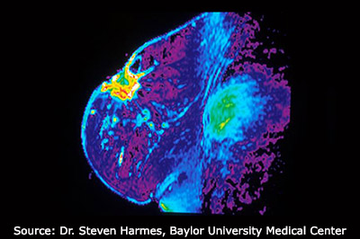 An MRI of a breast.