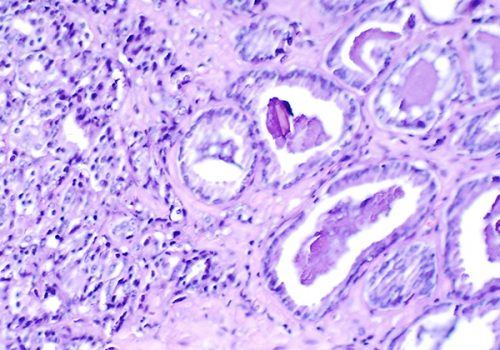 Histological slide (H & E stain at x300) showing prostate cancer.