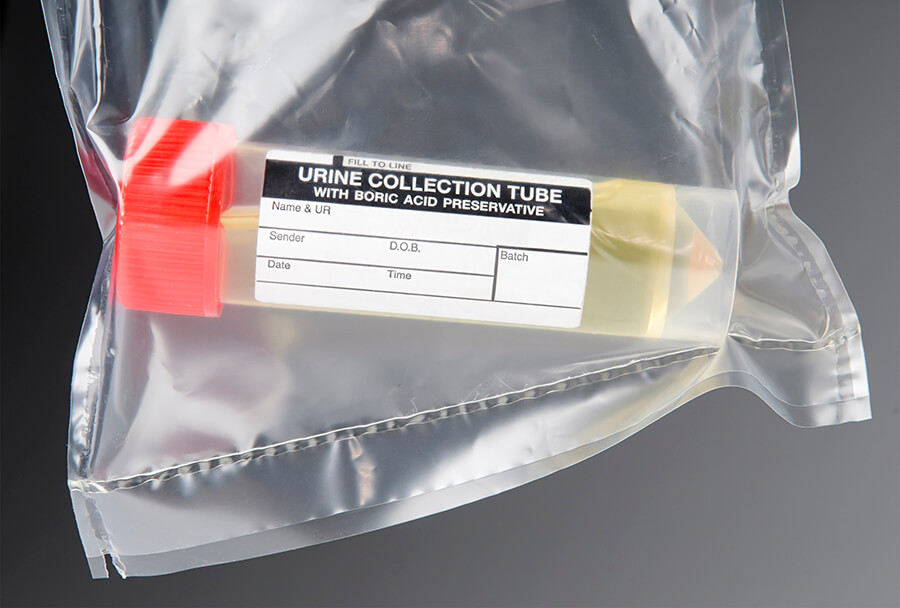 An image of a urine specimen in a collection tube.  Photo credit: iStockPhoto