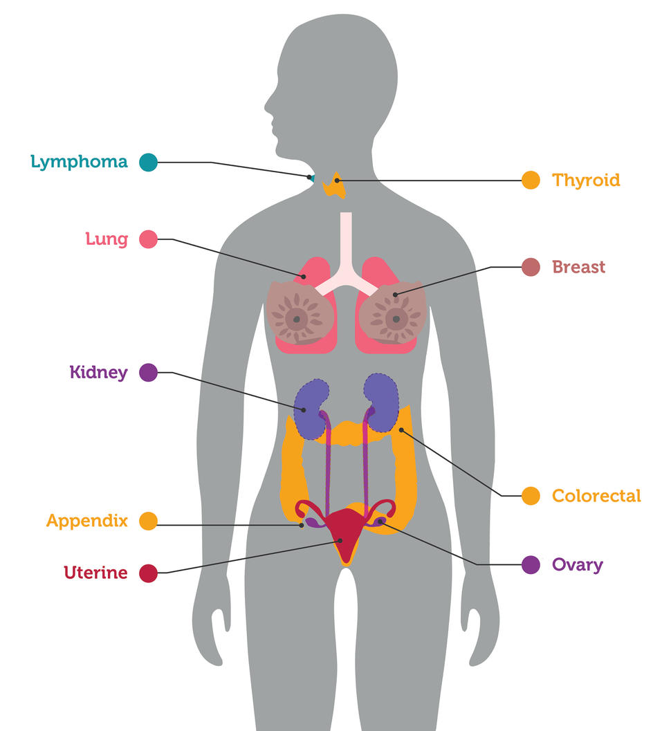 An illustration highlighting organs in which cancers were detected by an experimental blood test.