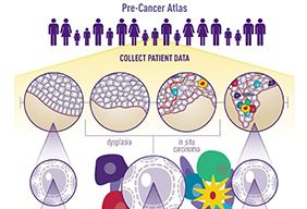 A partial screen grab of the Pre-Cancer Atlas (PCA) infographic.