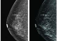 Breast nodules detected during screening by standard 2D digital mammogram (left) and tomosynthesis (right).