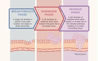 An illustration depicting three broad phases of tumor development along with driver gene mutations and their pathways, from breakthrough, to expansive, and invasive phases.