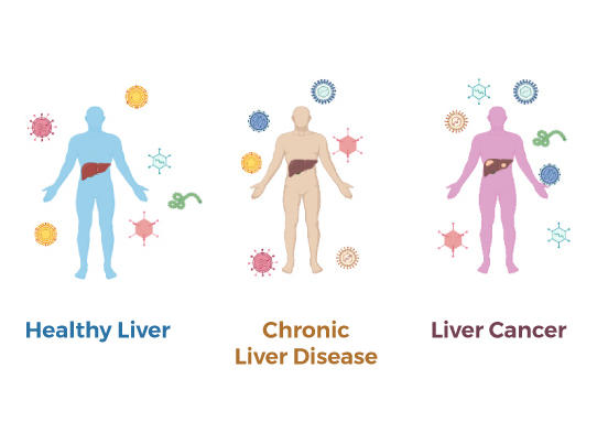 Virus particles surround three human figures with their livers highlighted. One figure has a healthy liver, one has chronic liver disease and one has liver cancer.